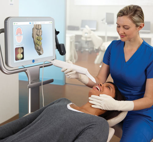 iTero Intraoral Scanner